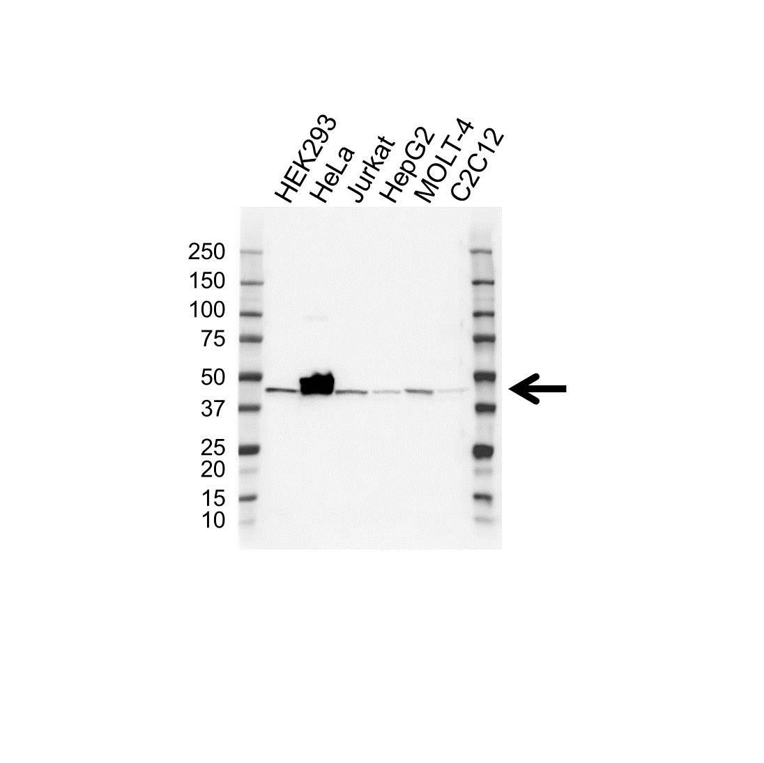 Anti BETA-CENTRACTIN Antibody (PrecisionAb Polyclonal Antibody) gallery image 1