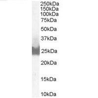 Anti Human BID (C-Terminal) Antibody gallery image 1