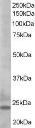 Anti Human BIM (C-Terminal) Antibody gallery image 1