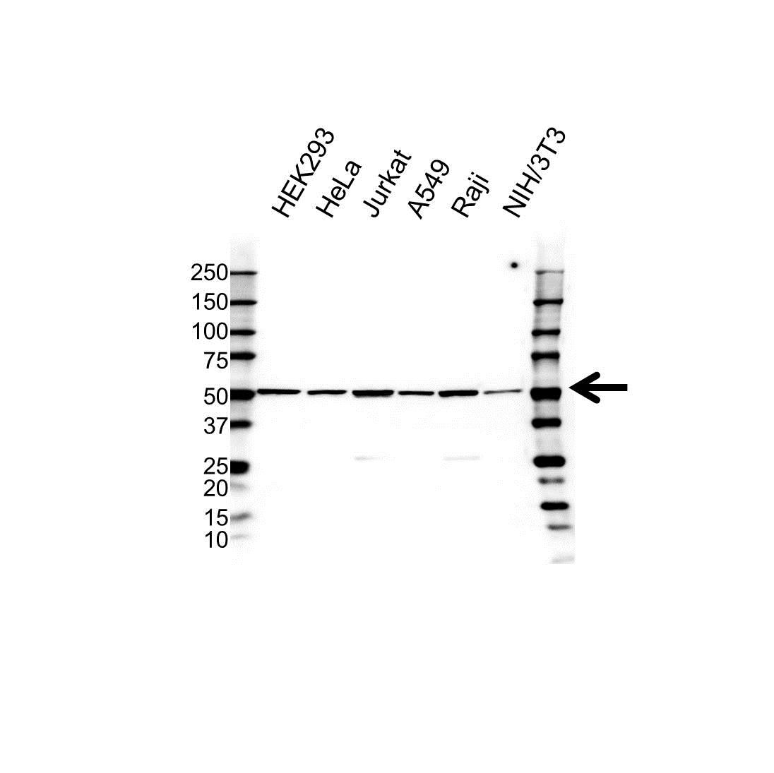 Anti BMP-15 Antibody (PrecisionAb™ Polyclonal Antibody) gallery image 1