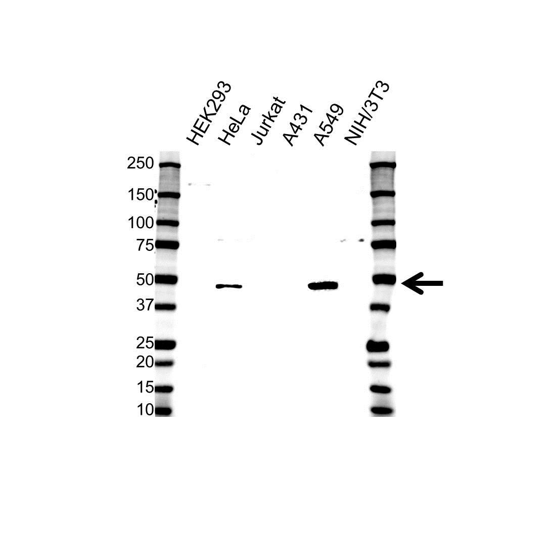 Anti BMP-4 Antibody (PrecisionAb™ Polyclonal Antibody) gallery image 1