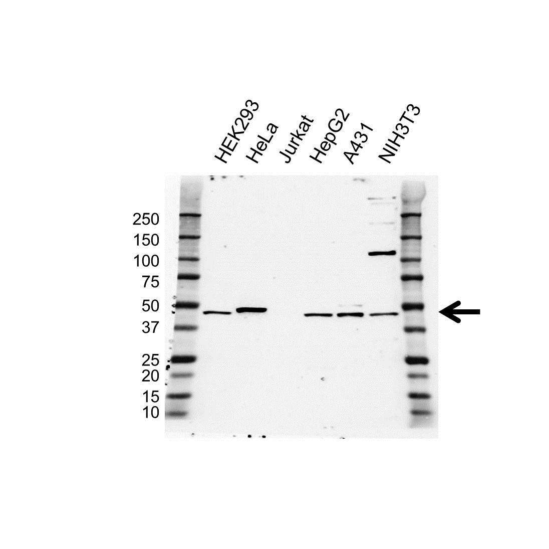 Anti BMP-9 Antibody (PrecisionAb Polyclonal Antibody) gallery image 1