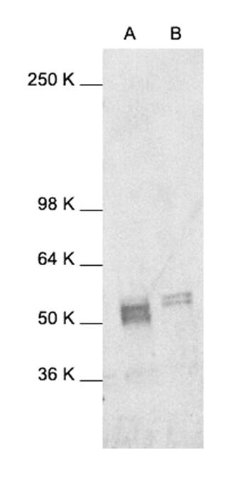 Anti c-Fos Antibody gallery image 1