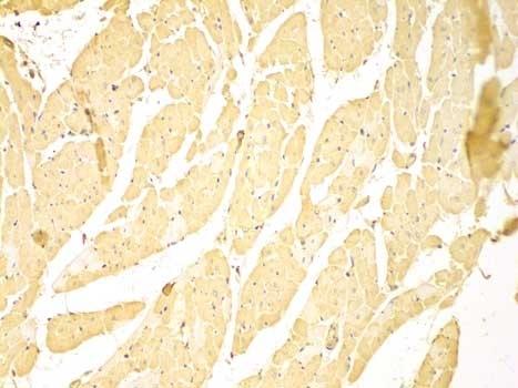 Anti C-IAP1 Antibody thumbnail image 2