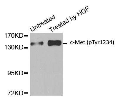 Anti c-Met (pTyr1234) Antibody gallery image 1