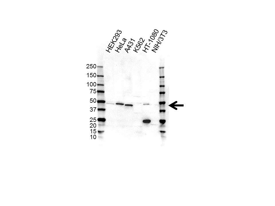 Anti CAD Antibody (PrecisionAb™ Polyclonal Antibody) gallery image 1