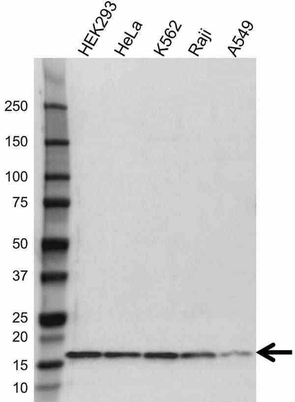 Anti Calcitonin Antibody (PrecisionAb Polyclonal Antibody) gallery image 1