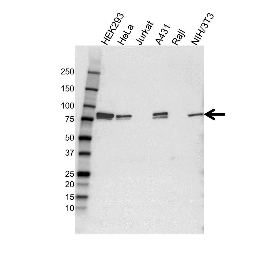 Anti Calpain-5 Antibody (PrecisionAb Polyclonal Antibody) gallery image 1