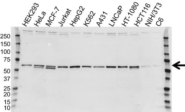Anti Calreticulin Precursor Antibody (PrecisionAb Polyclonal Antibody) gallery image 1