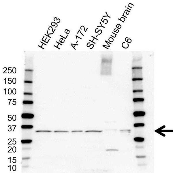 Anti Calretinin Antibody (PrecisionAb™ Polyclonal Antibody) gallery image 1