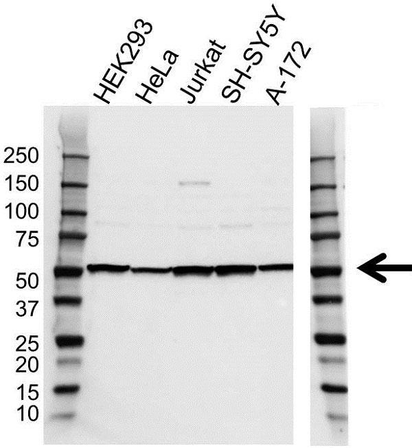 Anti Cannabinoid Receptor 1 Antibody (PrecisionAb Polyclonal Antibody) gallery image 1