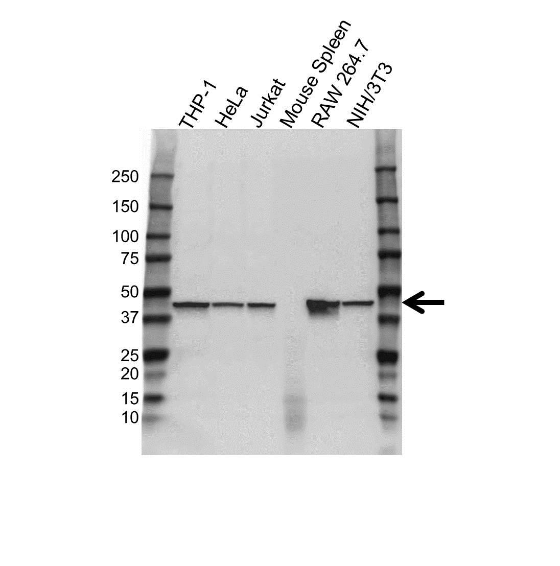 Anti CAPG Antibody (PrecisionAb Polyclonal Antibody) thumbnail image 1