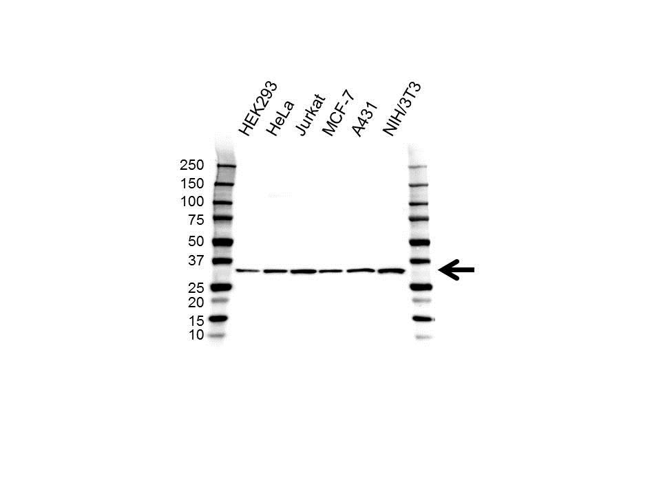 Anti CAPZB Antibody (PrecisionAb™ Polyclonal Antibody) gallery image 1