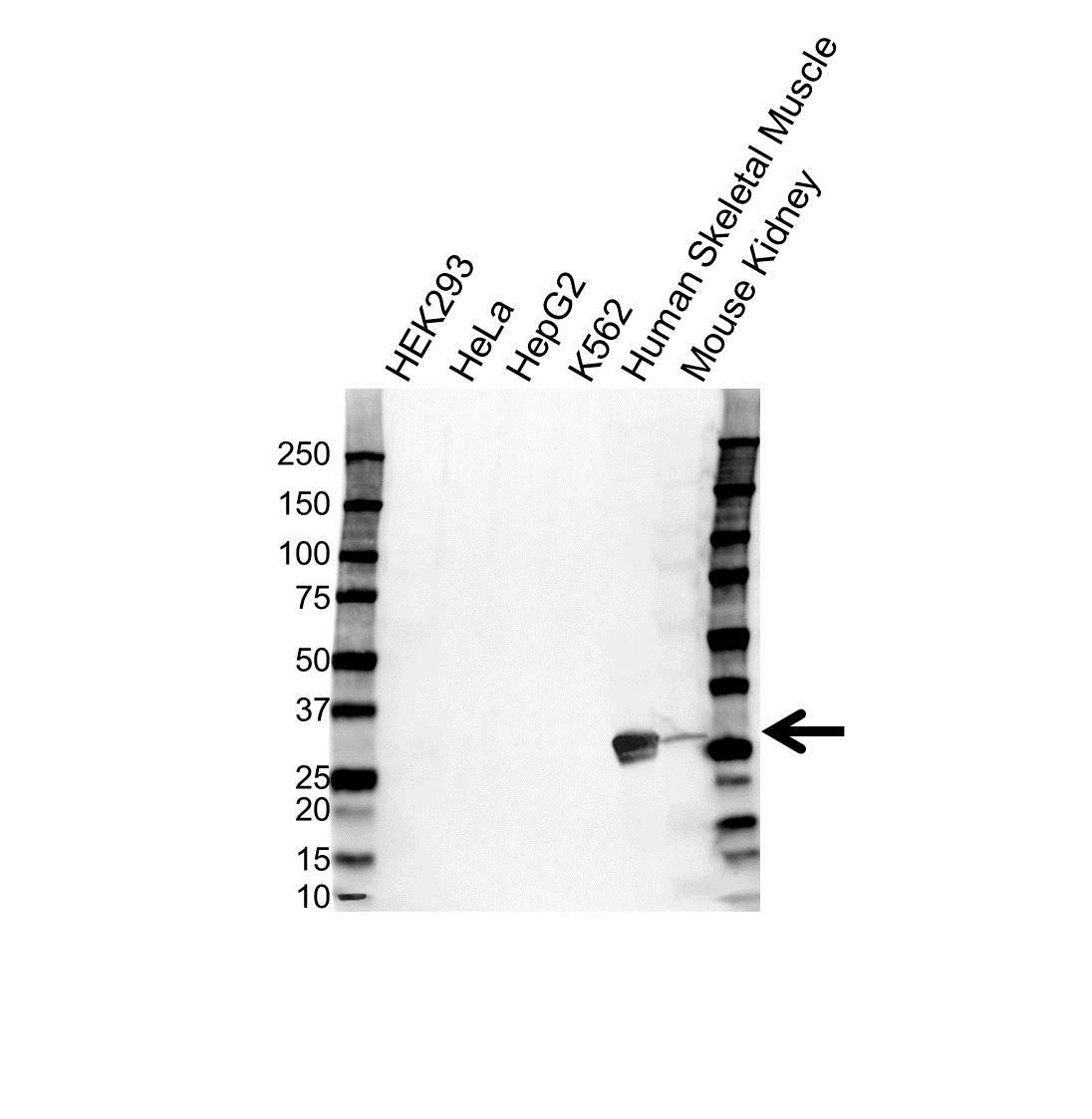 Anti Carbonic Anhydrase III Antibody (PrecisionAb Polyclonal Antibody) gallery image 1