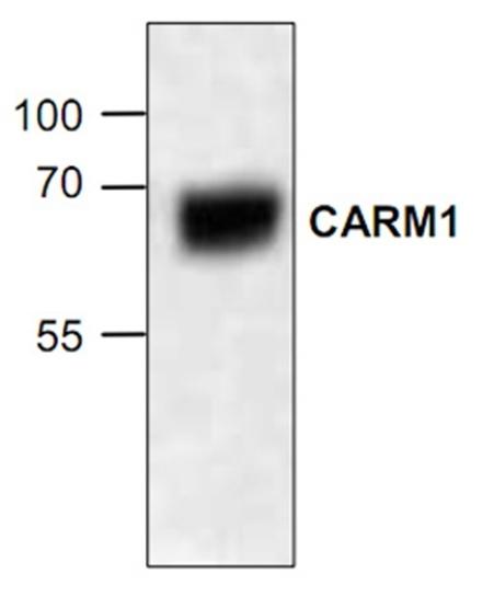 Anti CARM1 Antibody gallery image 1