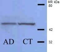 Anti Human Casein Kinase 1 Delta (C-Terminal) Antibody thumbnail image 2