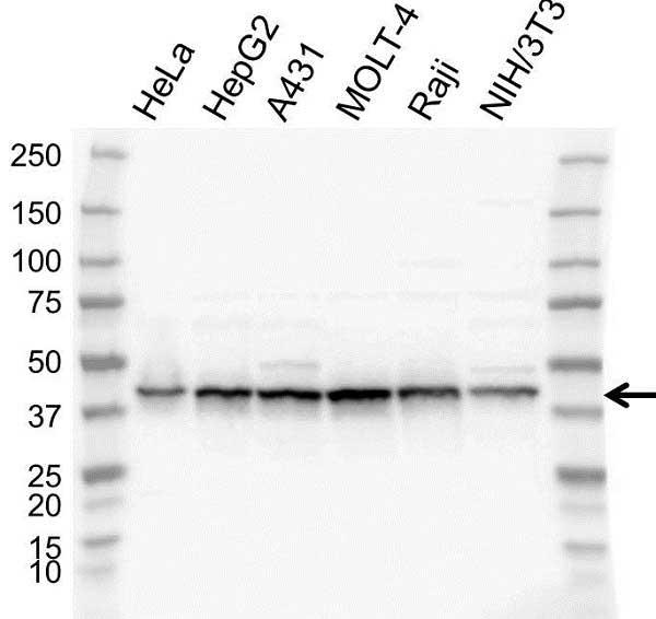 Anti Casein Kinase 2 Alpha 1 Antibody (PrecisionAb Polyclonal Antibody) gallery image 1
