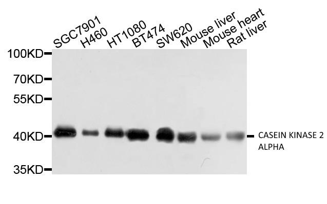 Anti Casein Kinase 2 Alpha Antibody gallery image 1