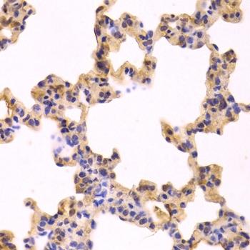 Anti Caspase-3 Antibody thumbnail image 2