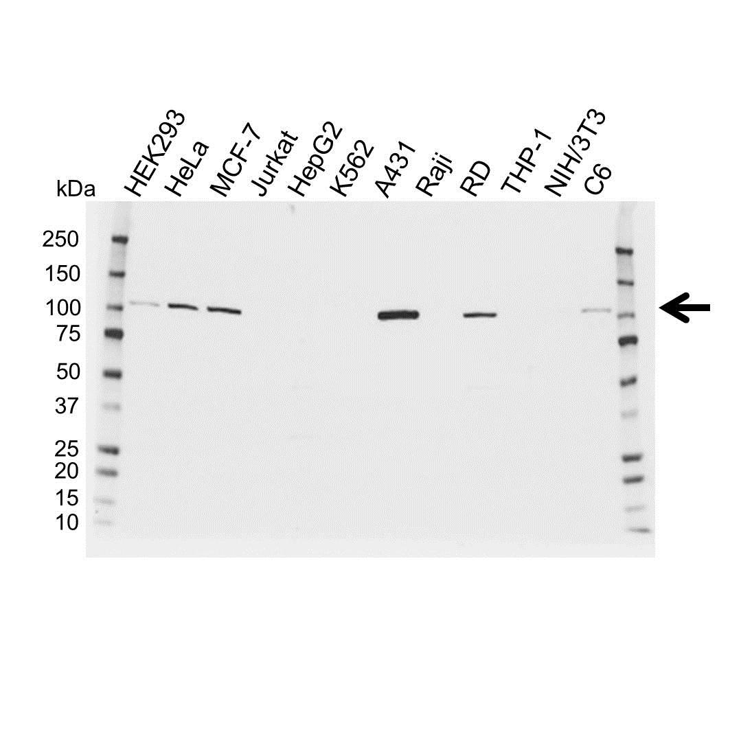 Anti Catenin Alpha 1 Antibody (PrecisionAb Polyclonal Antibody) gallery image 1