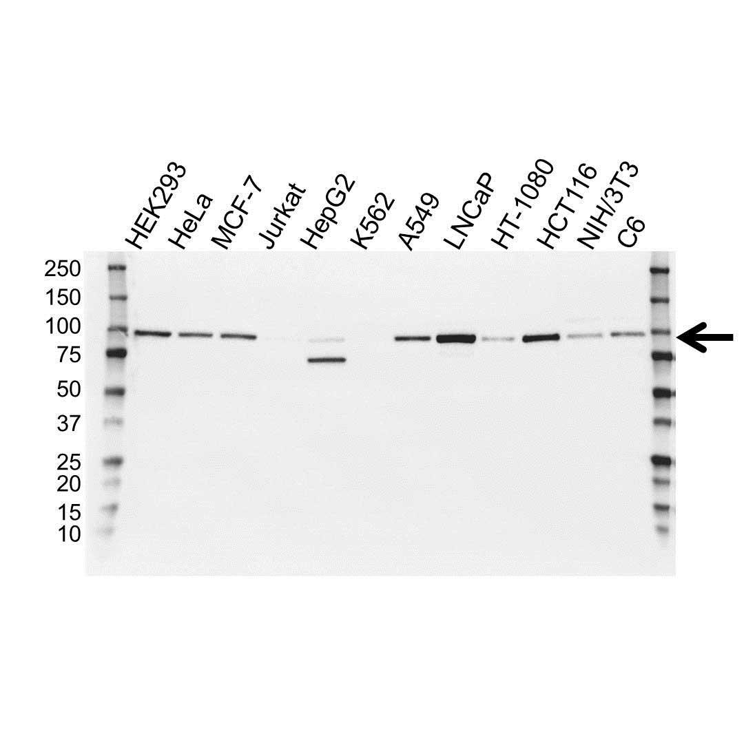 Anti Catenin Beta Antibody (PrecisionAb Polyclonal Antibody) gallery image 1