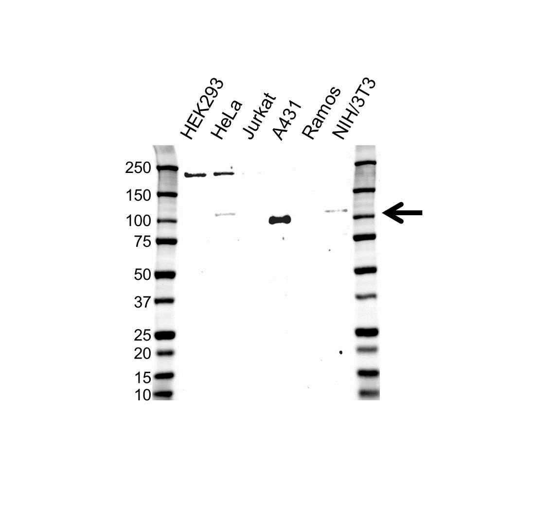 Anti Catenin Delta 1 Antibody (PrecisionAb Polyclonal Antibody) gallery image 1
