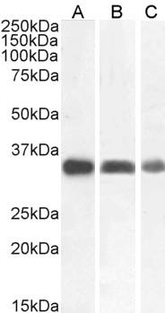 Anti Cathepsin B Antibody thumbnail image 1