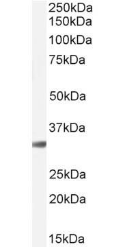 Anti Cathepsin B Antibody thumbnail image 4