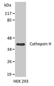 Anti Cathepsin H Antibody gallery image 1