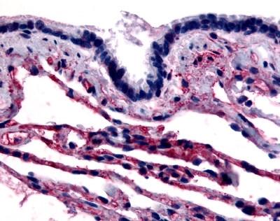 Anti Human Caveolin 1 (N-Terminal) Antibody gallery image 1