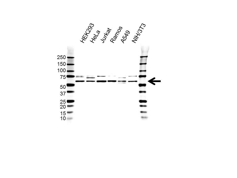 Anti CCT Delta Antibody (PrecisionAb Polyclonal Antibody) gallery image 1