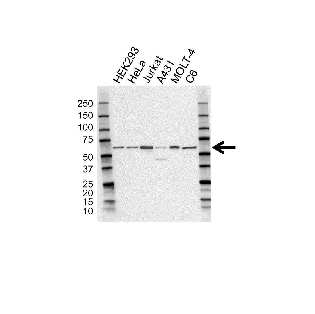 Anti CCT Epsilon Antibody (PrecisionAb Polyclonal Antibody) gallery image 1