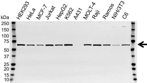 Anti CCT Gamma Antibody (PrecisionAb Polyclonal Antibody) gallery image 1