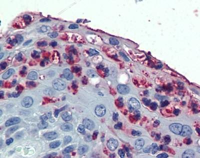 Anti Human CD11c Antibody gallery image 1