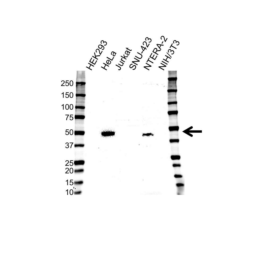 Anti CD120b Antibody (PrecisionAb Polyclonal Antibody) gallery image 1