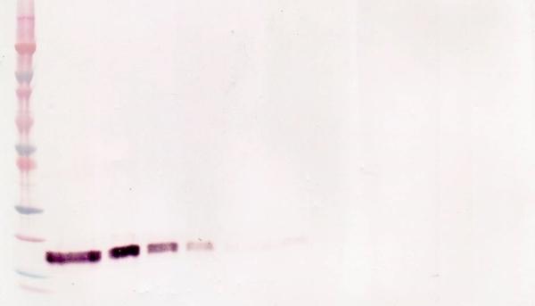 Anti Human CD120b (soluble) Antibody gallery image 1