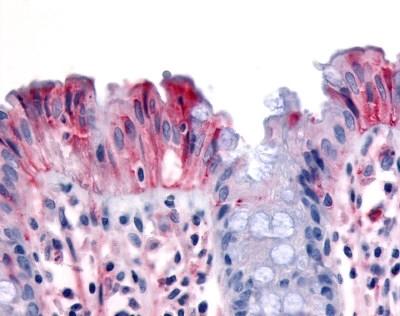 Anti Human CD136 Antibody gallery image 1