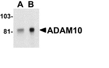 Anti Human CD156c Antibody thumbnail image 3