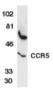 Anti Human CD195 (CCR5) Antibody thumbnail image 2