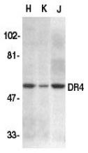 Anti Human CD261 (N-Terminal) Antibody gallery image 1