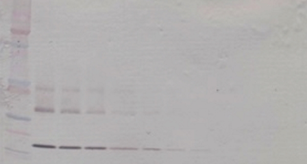 Anti Human CD265 (soluble) Antibody gallery image 1