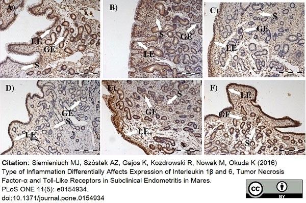 Anti Human CD282 (N-Terminal) Antibody thumbnail image 3