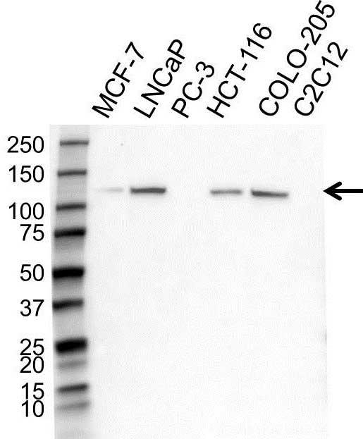 Anti CD324 Antibody (PrecisionAb Polyclonal Antibody) gallery image 1