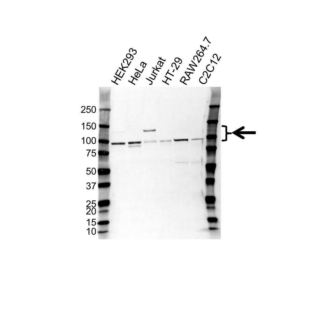 Anti CD61 Antibody (PrecisionAb Polyclonal Antibody) gallery image 1