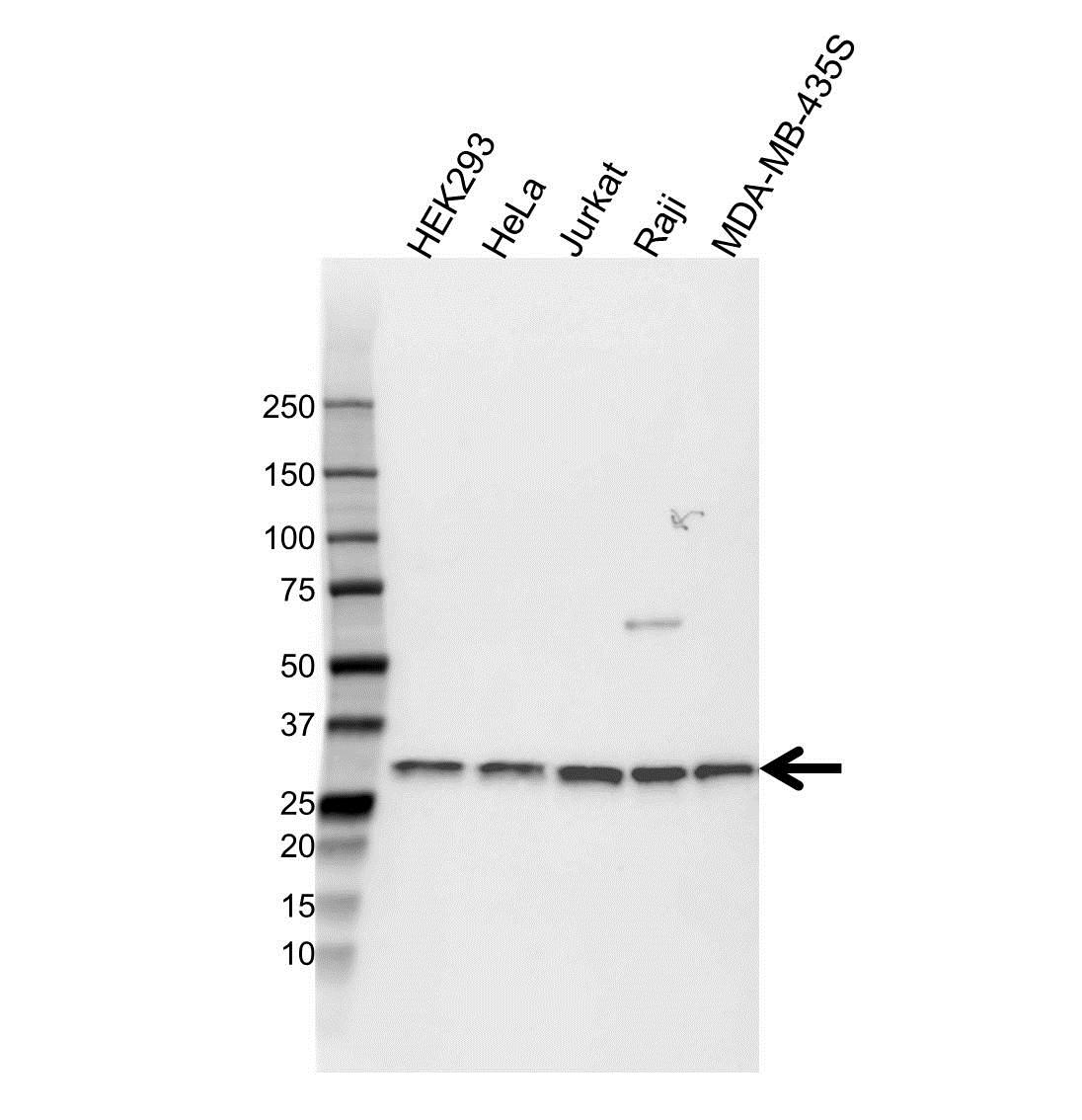 Anti CD8 Beta Antibody (PrecisionAb Polyclonal Antibody) gallery image 1