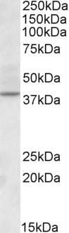 Anti CDK10 Antibody gallery image 1
