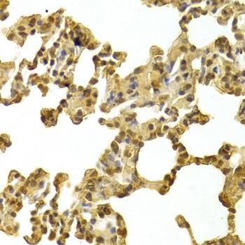 Anti CDK4 Antibody thumbnail image 2
