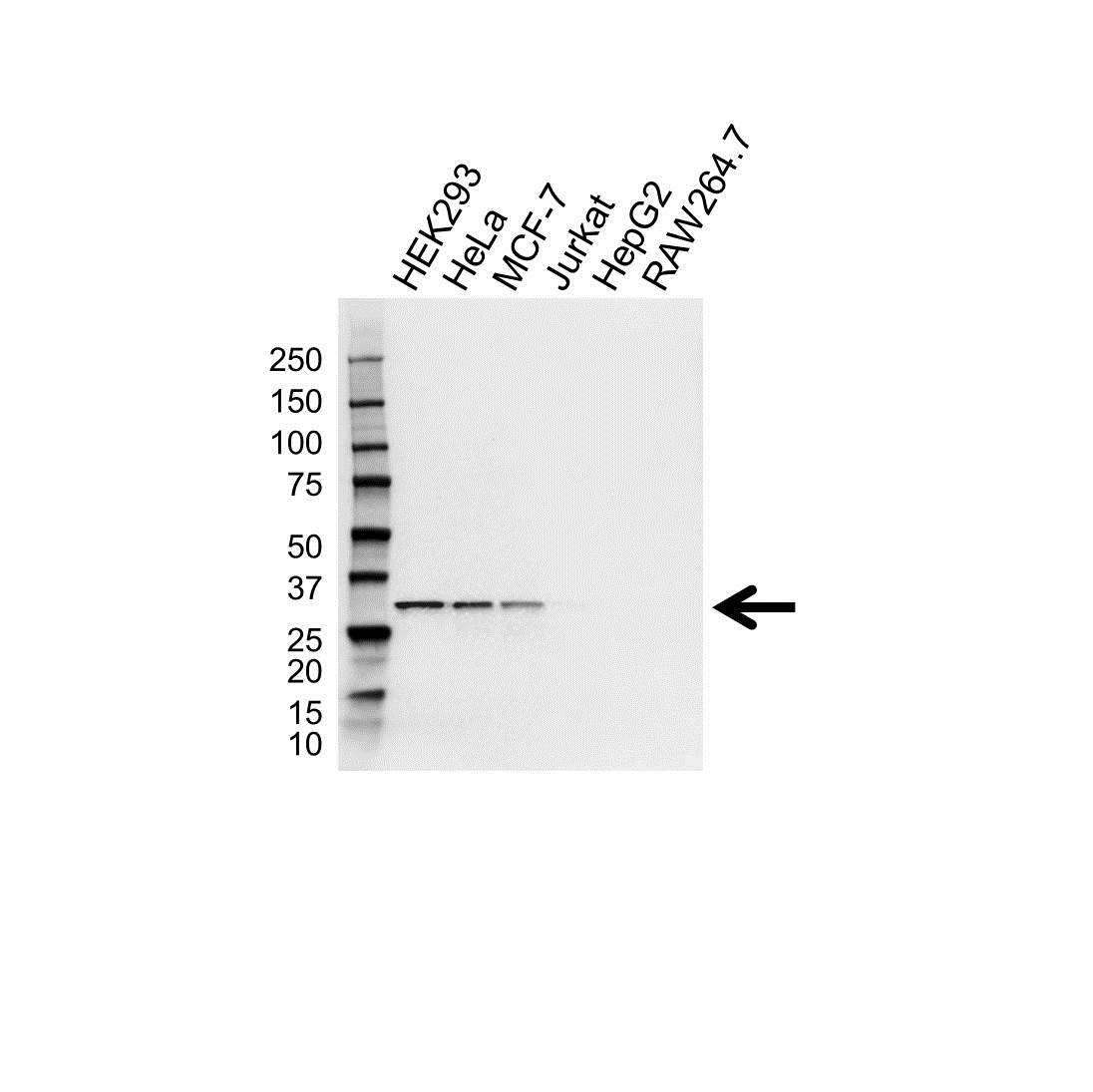 Anti CDK4 Antibody (PrecisionAb™ Polyclonal Antibody) gallery image 1