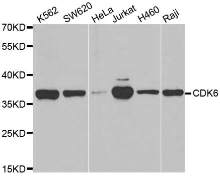 Anti CDK6 Antibody thumbnail image 1