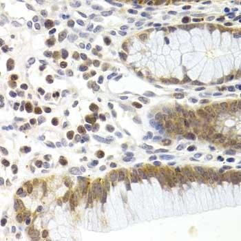Anti CDK6 Antibody thumbnail image 3